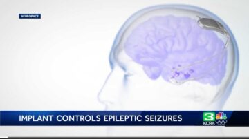 'It's like night and day': Implant helps woman control epileptic seizures